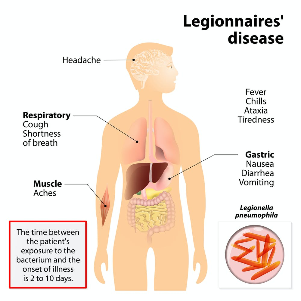 This infographic from medicalxpress details the common signs and symptoms of Legionnaires' Disease.
